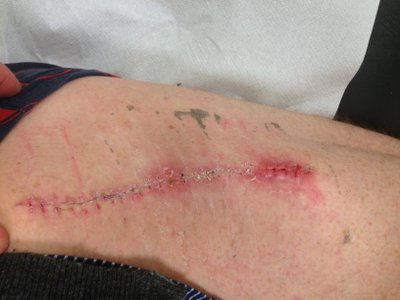 Scar on the leg after operation